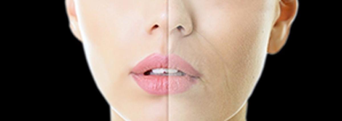 Plasma gel para rellenar arrugas.