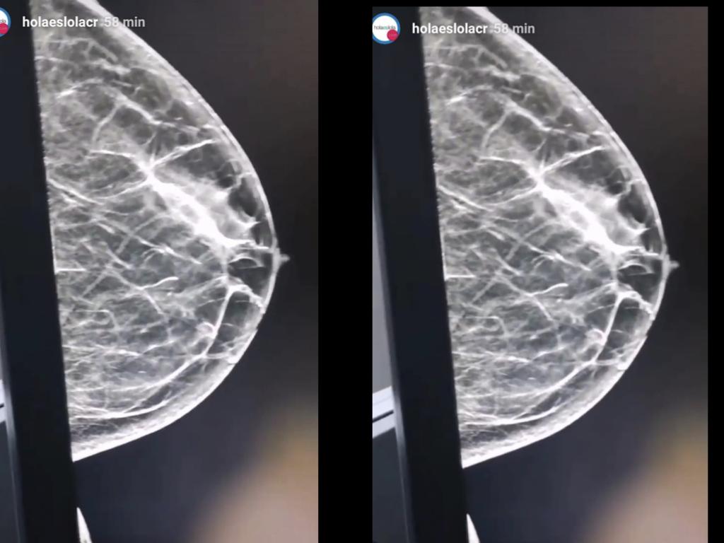 Mamografía 3D